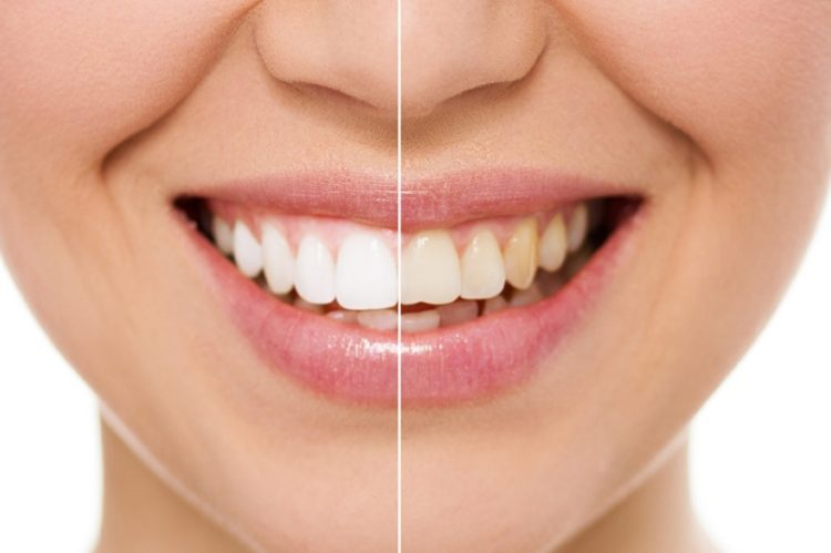 blanchiment dentaire avant apres